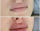 Увеличение губ контурная пластика сертифицированным косметологом с мед образованием