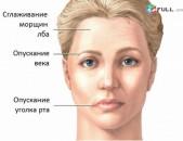 Контурная пластика гиалуроновой кислотой: исправление недостатков лица