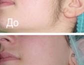 Удаление волос на лице воск жемчужный Facial hair removal wax pearl
