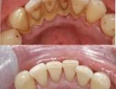 ԱԿՑԻԱ!!! Ատամնաքարերի հեռացում և ատամների փայլեցում ՝8000 դրամ!!!!!