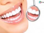 Ատամնաքարերի հեռացում+ատամների փայլեցում ՝7000 դրամ