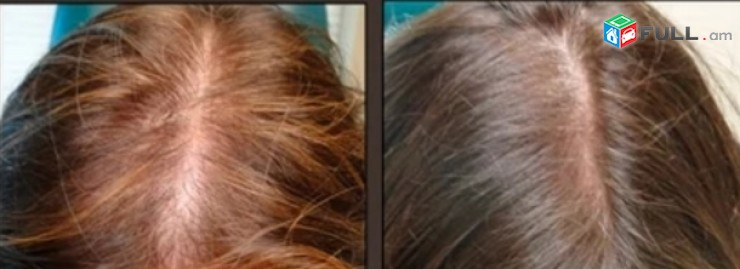 Թափված մազերի վերականգնում