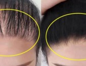 Թափված մազերի վերականգնում բուսական յուղերով