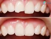 Atamnabuyj (stomatolog)