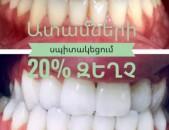 Ակցիա Ատամների սպիտակեցում: Отбеливание зубов