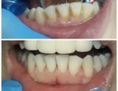 Ստոմատոլգիա / stomatolog ատամի պլոմբավորում / atami plombavorum