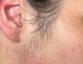 ASEXAYIN epilacia 100% ardzyunq