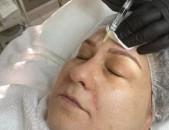 Mezoterapia, biorevitarizacia