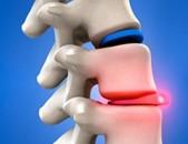 Բուժում лечение Ударно-волновая терапия Գրիժա Карипазим Կարիպաին grija, udarno
