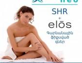 Լազերային Էպիլյացիա, Էլոս +SHR 50 % զեղչ, չլսված գներ, cosmolazer
